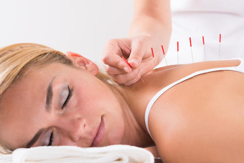ACUPUNCTURE Natural mood booster image